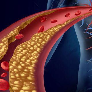 Dislipidemia tratamiento y recomendaciones