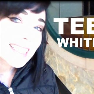 Teeth Whitening Mall Kiosk
