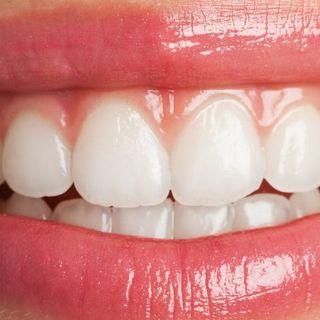 Sin una buena higiene bucal puede suceder lo siguiente...