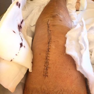 Odisea hospitalaria !! Prótesis de rodilla 3 intervención.