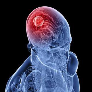 La encefalitis, causas síntomas y tratamiento