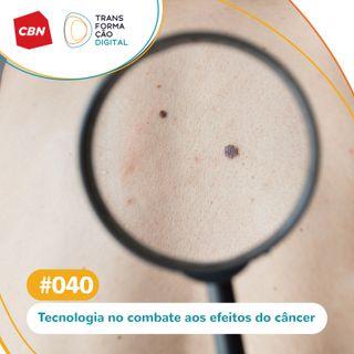Ep. 040 - Tecnologia no combate aos efeitos do câncer de pele