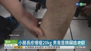 13:02 男小腿紅疹難癒 檢測胰臟癌末期... ( 2019-04-24 )