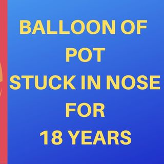 MAN HAS BALLOON OF POT UP HIS NOSE FOR 18 YEARS