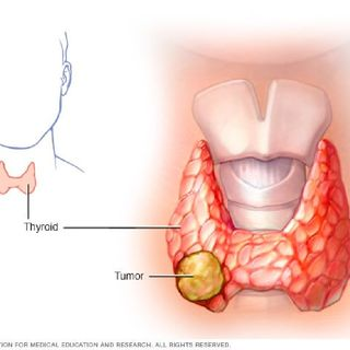 Pathology Pearls | Episode 11 | Most Commons In Thyroid Cancer