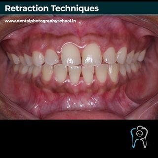 Retraction in dental photography
