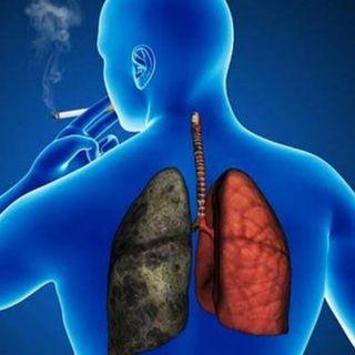 cáncer pulmonar