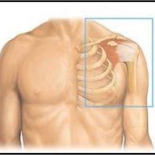 Il Dr. Stati ed il dolore cronico alla spalla