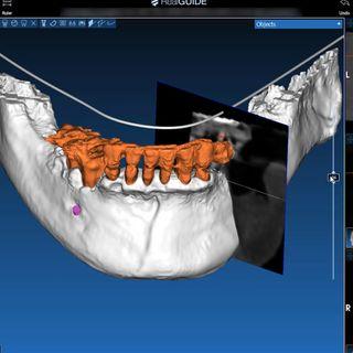 DentalPodcast.it - Cloud e realtà aumentata nell'odontoiatria di domani
