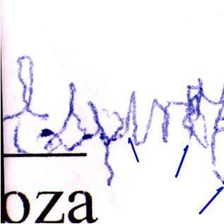 Cerebro y Pericia Caligráfica II