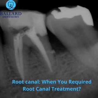 Root Canal: Latest Technologies To Performed Advance Treatment