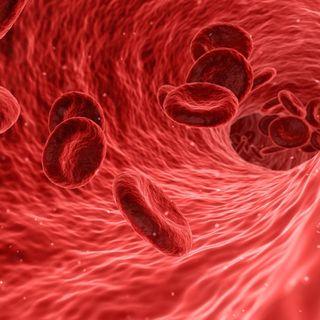 Anemia aplásica, sinónimo de muerte