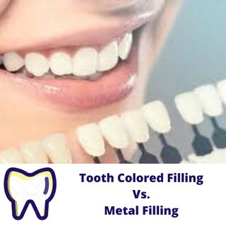What Is Tooth Colored Filling?