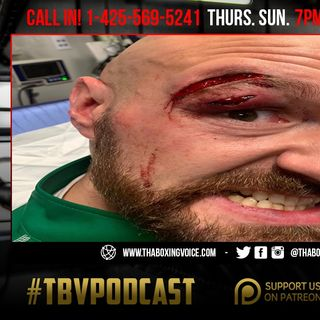 ☎️Tyson Fury Gets Brutal Cut🤕Canelo vs Kovalev Official😱Devin Haney ⭐️ Next Mayweather❓