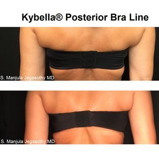 Health Check: How To Nonsurgically Get Rid of Bra Line Fat with Kybella® Fat Melting Injections