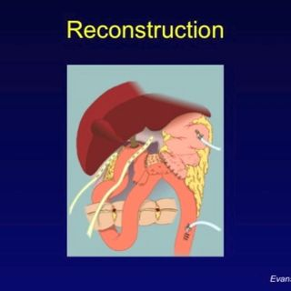 Managing Pancreatic Cancer: Surgery for Pancreatic Cancer, Its Complications, and the Importance of Surgical Volume (video)