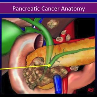 Chemotherapy for Pancreatic Cancer, Part 2: Resectable vs. Unresectable Pancreatic Cancer (video)