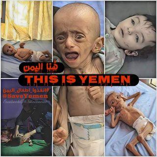 The War on Yemen: A Conversation with Aisha Jumaan