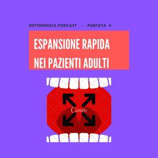 Espansione Rapida negli adulti (senza chirurgia)