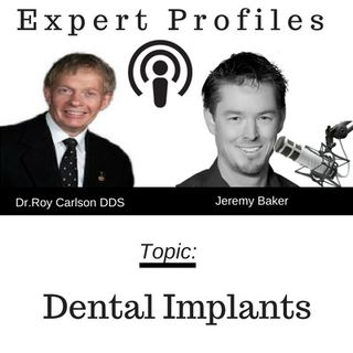 Dental Implant Q&A with Dr. Roy Carlson
