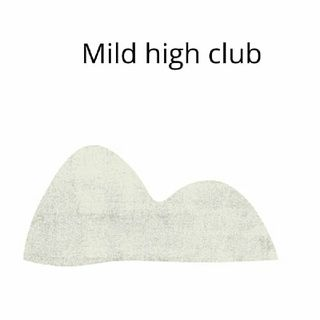 Episode 1 - Mild High Club