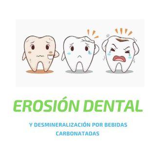 Erosión dental por bebidas carbonatadas