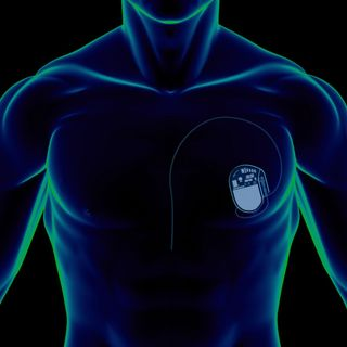 Taking the Pulse on Medical Device Security