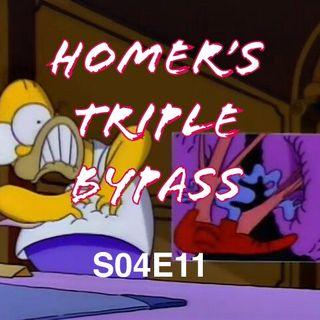 35) S04E11 (Homer's Triple Bypass)