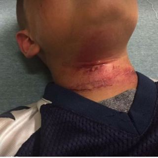 8 Yr. Old New Hampshire Boy Hospitalized After Being Hung From A Tree. Just Say No To Interracial Breeding.""