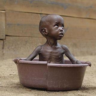 Somalia, 58mila bambini soffrono la fame