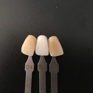 fa male fare lo sbiancamento dei denti?