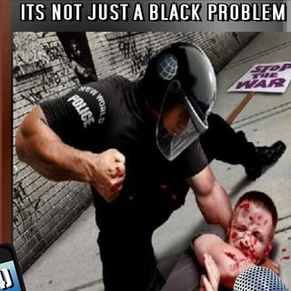 DPRadio Presents FREE SPEECH RADIO - POLICE BRUTALITY
