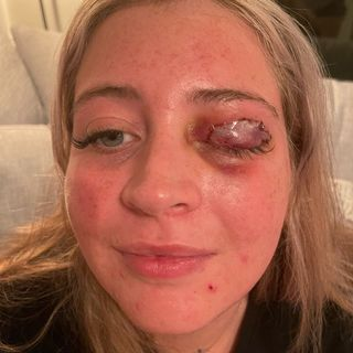 Beautician's Vicious Chihuahua Bites Off Victims Eyelid
