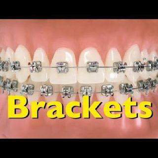 Quién necesita ortodoncia?
