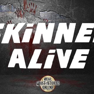 Skinned Alive | Best of RGSO