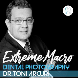 Extreme Macro in Dental Photography with Dr Toni Arcuri, Brazil