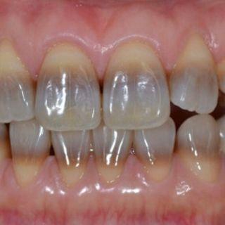 lo sbiancamento dei denti scurissimi