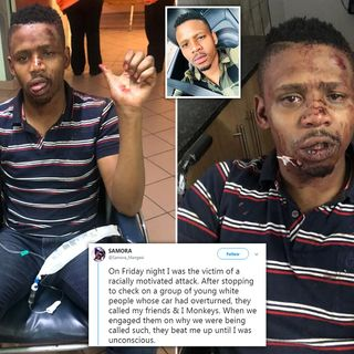 A black South African TV and radio presenter has said he was the victim of a racially motivated attack