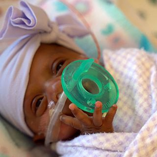 Size of an apple Girl becomes tiniest newborn to survive