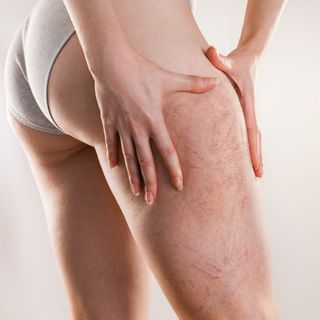 Varicose Vein Treatments | Complete Medical Wellness