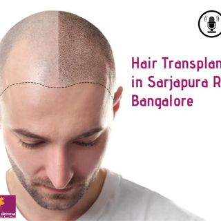 Hair Transplant in Sarjapura