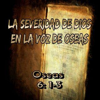 La Severidad de Dios en la voz de Oseas