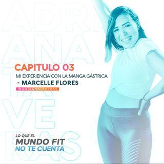 Mi experiencia con la manga gástrica - Marcelle Flores l CAP 3 l Adriana Taveras