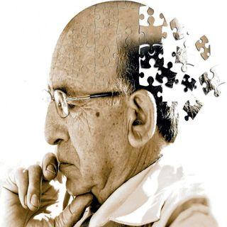 Fracasa tratamiento contra el Alzheimer