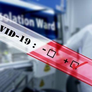 Coronavirus, 379 i nuovi casi. 9 persone decedute