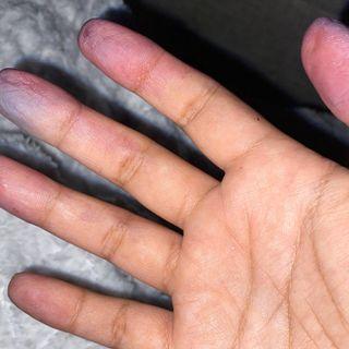 335 - Perché le dita fredde fanno male