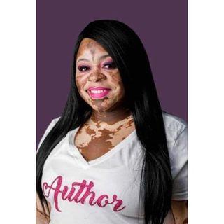 """Nakeyia Jones The Author of """"Super Spots"""" Children's Book"""