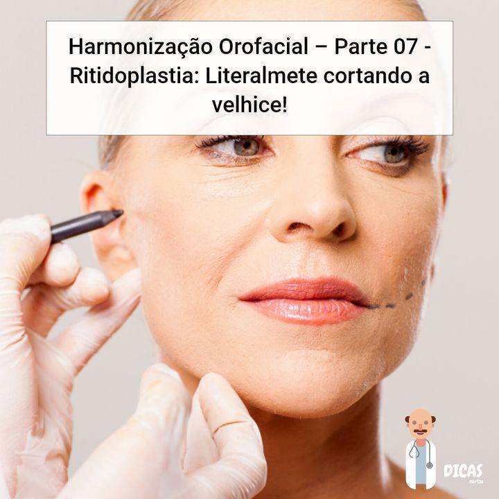 085 Harmonização Orofacial - Parte 07 - Ritidoplastia: Literalmete cortando a velhice!