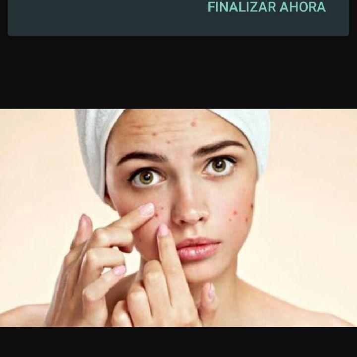 Mitos Sobre El Acne