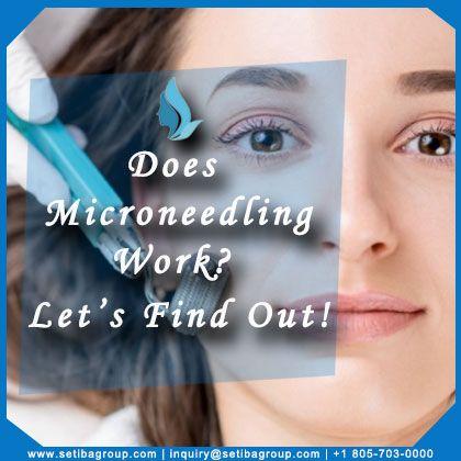 Does Microneedling Work